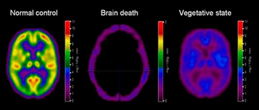 MRI Brain death